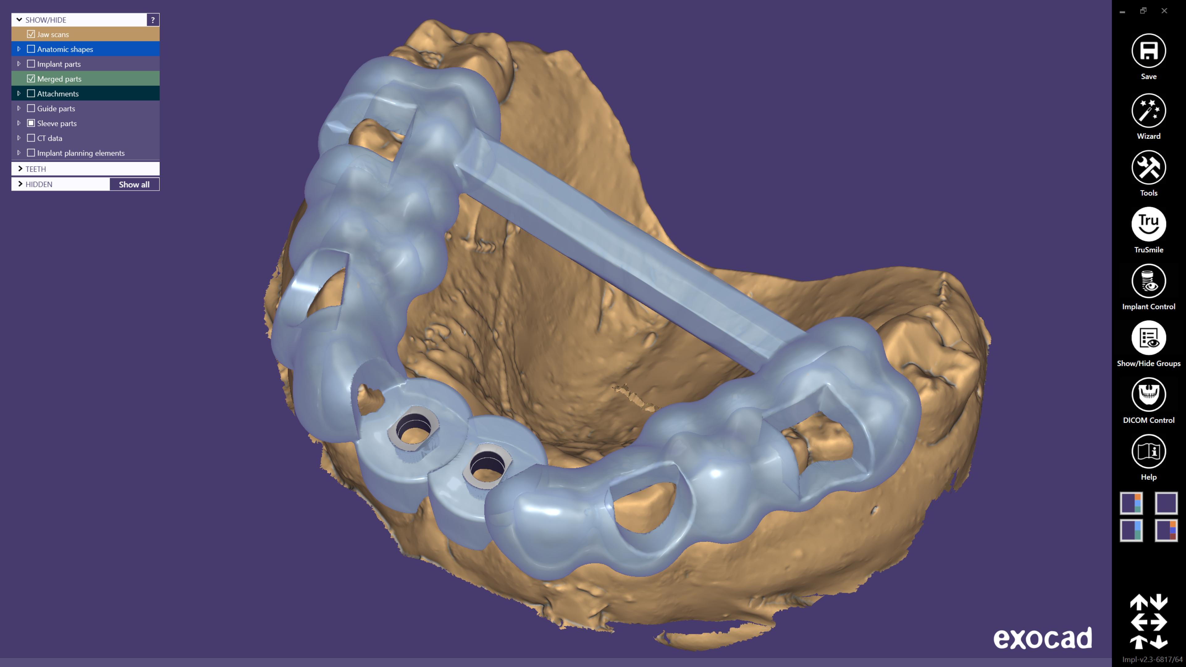 exoplan - podporované implantátové systémy
